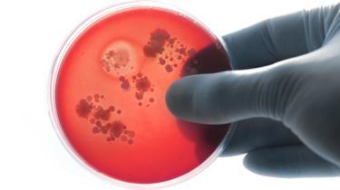 Placa com cultura de bactérias