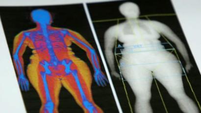 medición abdominal de grasa visceral