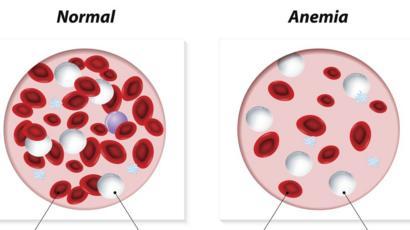 que pasa cuando hay mucha anemia