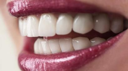 Man Fined For Selling Illegal Teeth Whitener On Ebay Bbc News