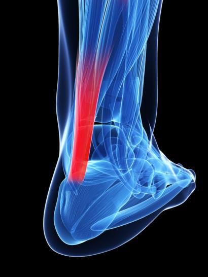 tratamiento para la tendinitis en el tobillo