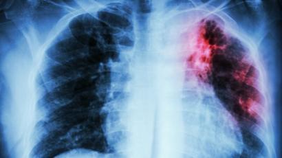 Radiografía de pulmón.