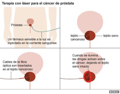 cirugía de próstata después de la radioterapia