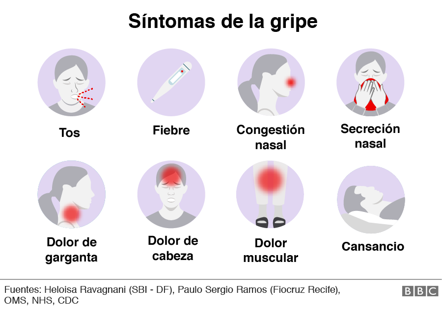 ¿Puedes tener un caso leve de gripe?