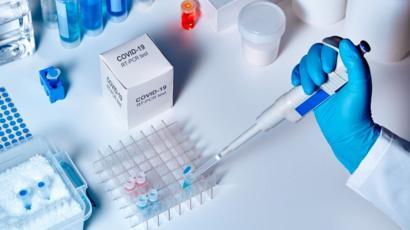 """Coronavirus   """"No es una creación de laboratorio"""": cómo un grupo ..."""