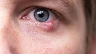 ¿El VIH causa infecciones oculares?