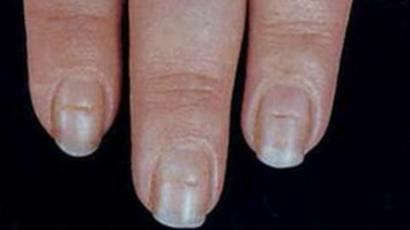 manchas blancas y amarillas en las uñas