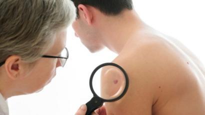 ¿Se puede infectar y propagar el cáncer de piel?