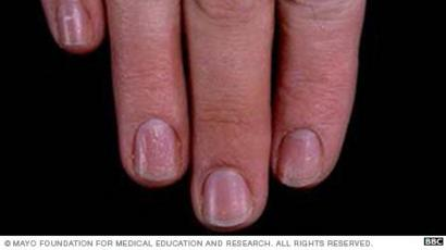 infeccion uñas mano