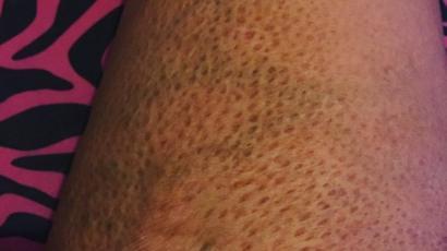 injerto de piel y quemaduras