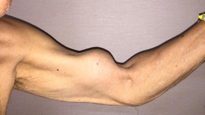 sintomas de desgarro muscular en el brazo