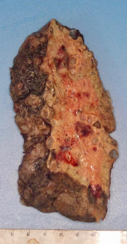 Imagem do pulmão substituído em transplante