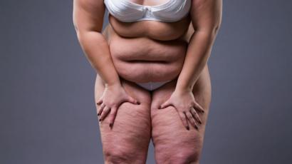 Gorda tratando de perder peso