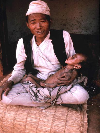 Father and baby son with advanced TB at Dhankuta at the newly opened TB clinic in about 1969