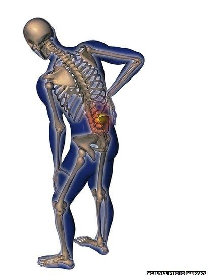 lower back pain in humans