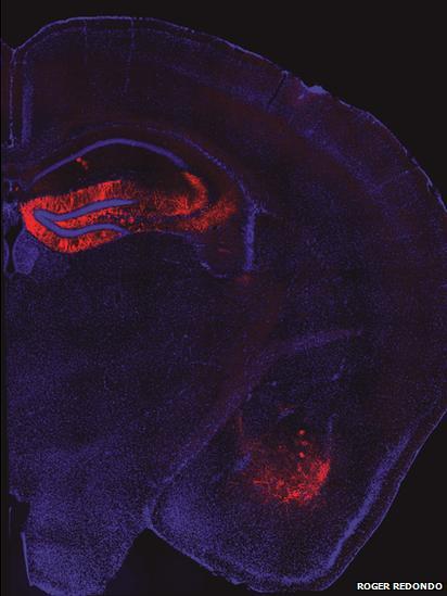 mouse brain