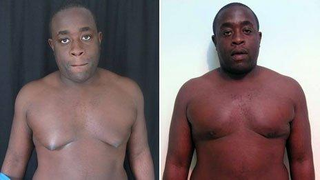 Ayo Adesina before and after surgery