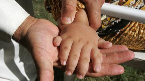 Doctor shows the six fingers of a child in Fallujah
