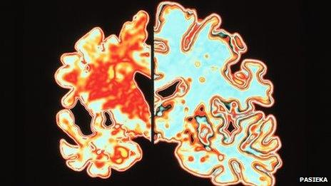 Scan of a brain of an Alzheimer's patient which shows significant signs of shrinking compared to a normal brain.