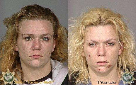 """""""Before"""" and """"After"""" pictures of a crystal meth addict"""