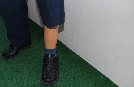 Arno Sonntag's artificial left leg