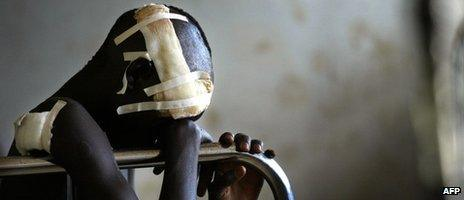 A boy wounded during an attack by rebels in northern Uganda sits in hospital (November 2003)