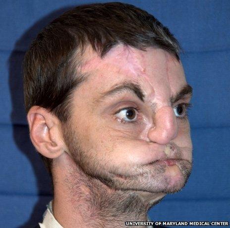 Richard Norris before his face transplant operation (Photo: University of Maryland Medical Center)