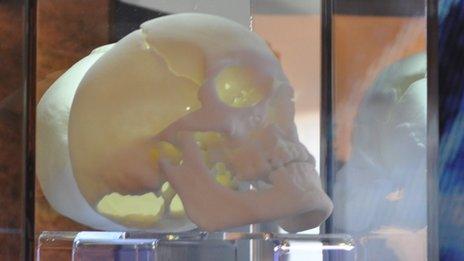 A 3D replica of the skull