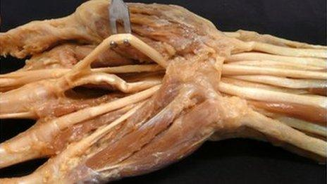 A hand preserved using Thiel's method of embalming