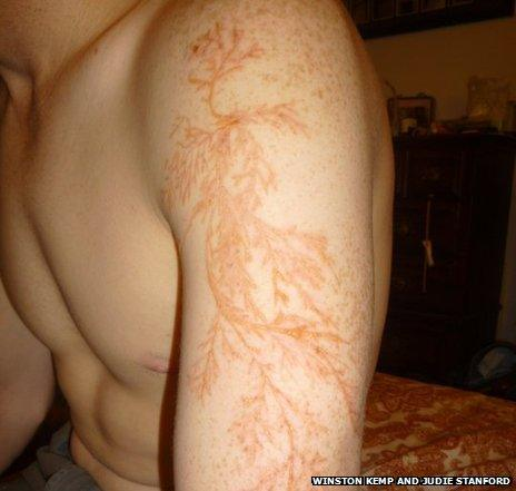 A man's arm with lightning injuries that look like flower or tree branches