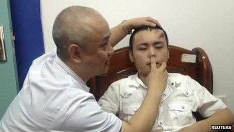 A doctor checks the damaged nose of Xiaolian