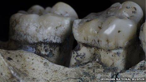 Toothpick lesion on hominid teeth