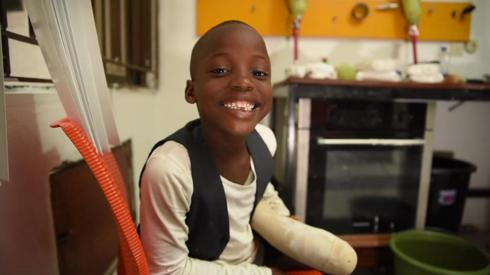 A young boy with a prosthetic limb