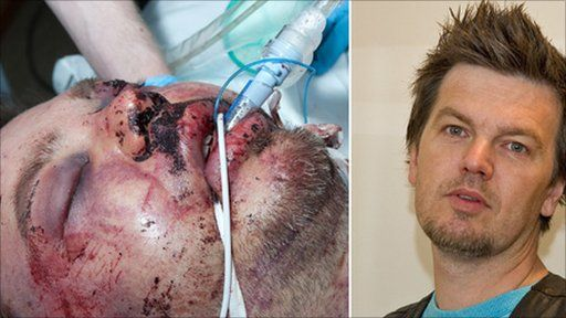 David Baird who was attacked in a vicious assault