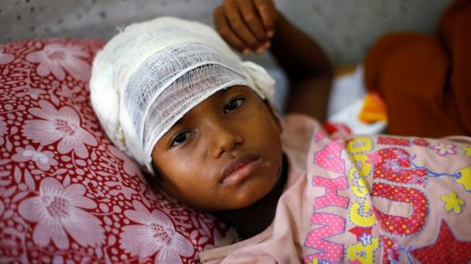 Mahaifiyar wannan yarinya Kalima mai shekara 10, ta ce sojojin Myanmar ne suka soka mata wuka