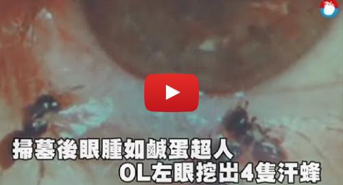 Youtube publication par 蘋果新聞網: 好驚悚!OL掃墓後眼腫如鹹蛋超人 左眼竟挖出4隻汗蜂 | 蘋果新聞網