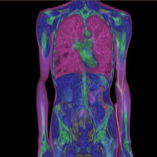 Entire Body, Frontal View. 3D Ct Scan.