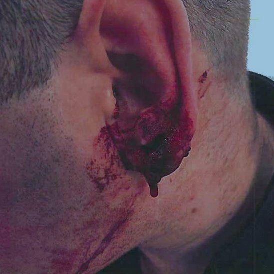 The officer's injured ear