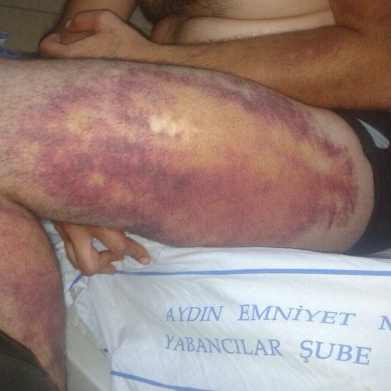 Picture of Ahmad's bruised leg