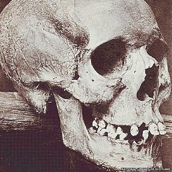 The skull from the grave was displayed at St Andrews University Museum