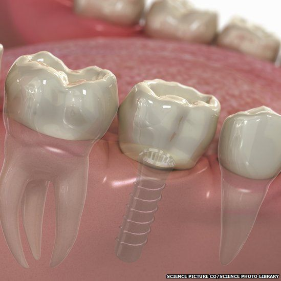 A model of a dental implant in the lower jaw