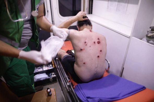 Гурам Мурадов получил множественные ранения от резиновых пуль