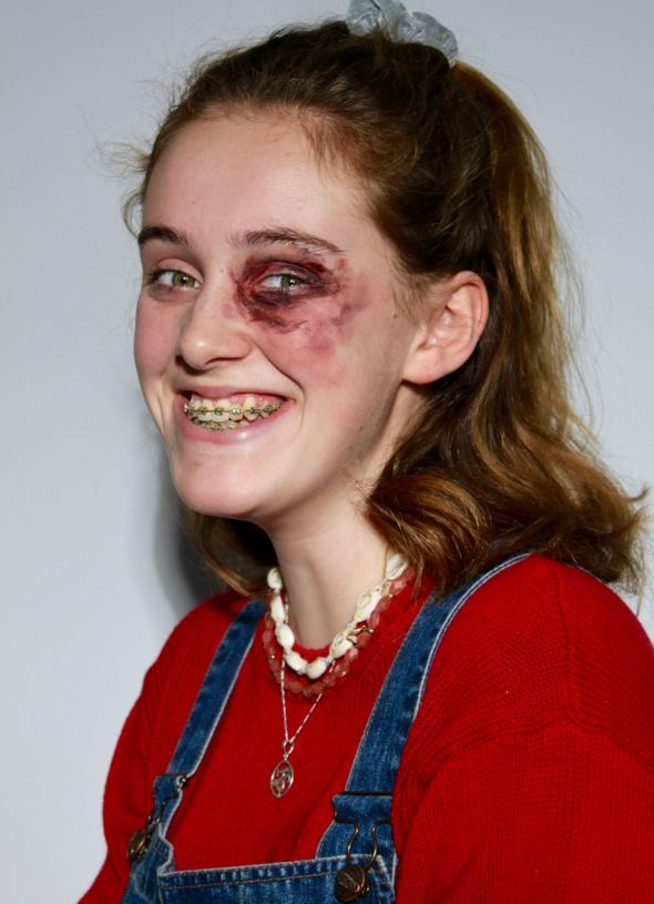 Portrait of a young woman with bruises on her face, created by make-up