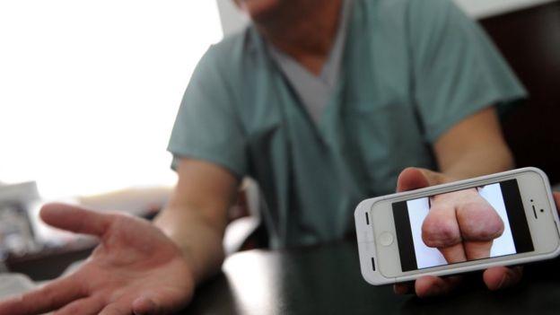 Un cirujano plástico muestra la foto de una mujer con una operación fallida