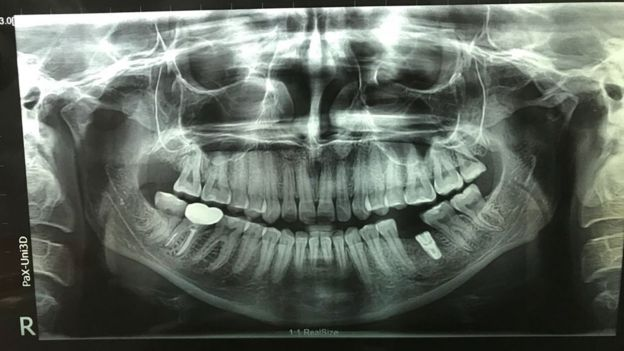 X-ray of Lizzie Porter's teeth