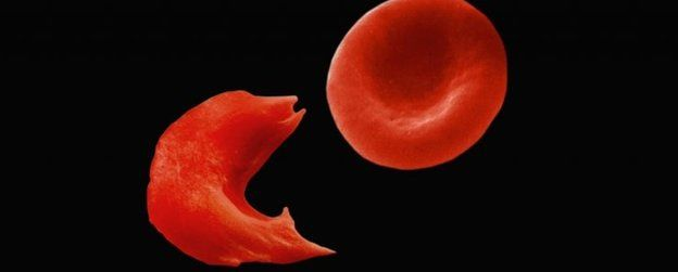 Image result for How can sickle cell kill a person?
