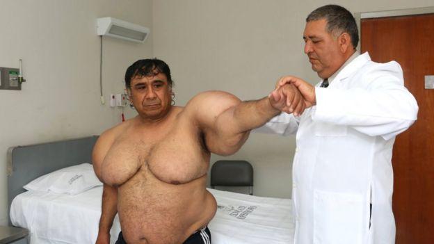 El extraño caso del buzo peruano que tiene el cuerpo