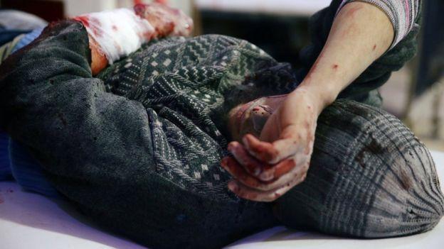 Paciente ensanguentado em hospital na Síria