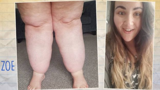 como adelgazar piernas gruesas