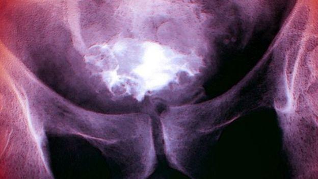 سرطان المثانة